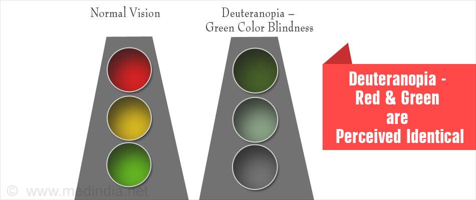 Deuteranopia П��💻 Iris Software For Eye Protection