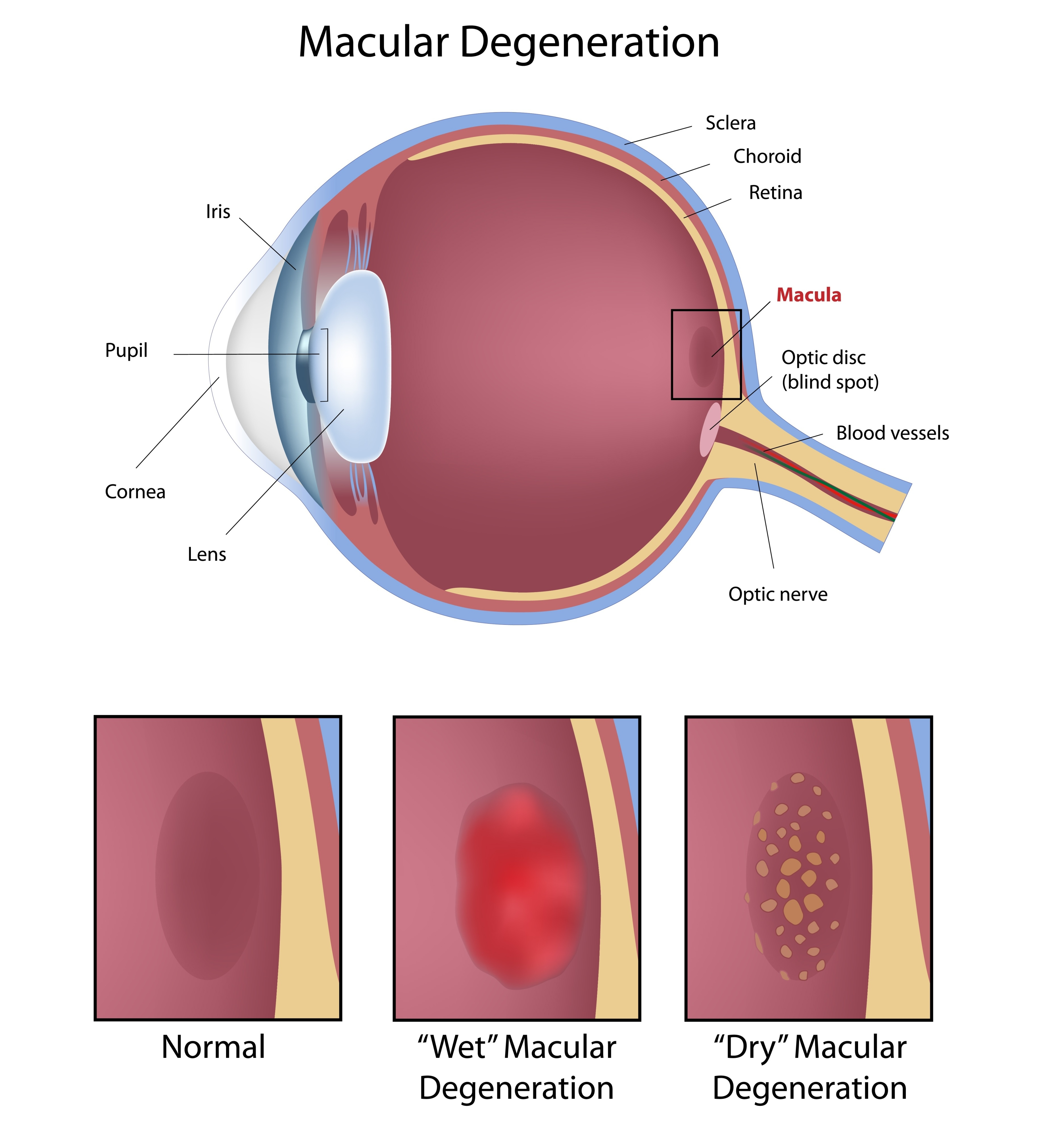 macula 1 iris software for eye protection health and