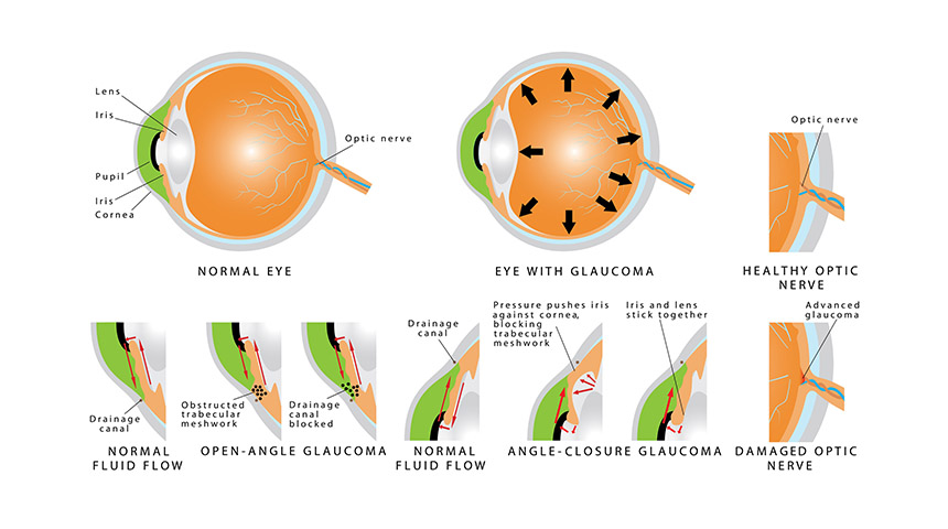 Glaucoma Treatment - 💡💻 Iris - Software for Eye protection ...