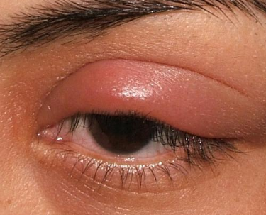 What to do with swollen eyes from allergy
