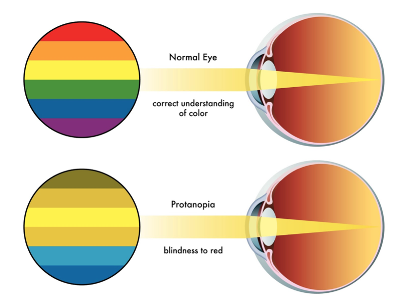 Color Blindness Protanopia Iris Software For Eye Protection
