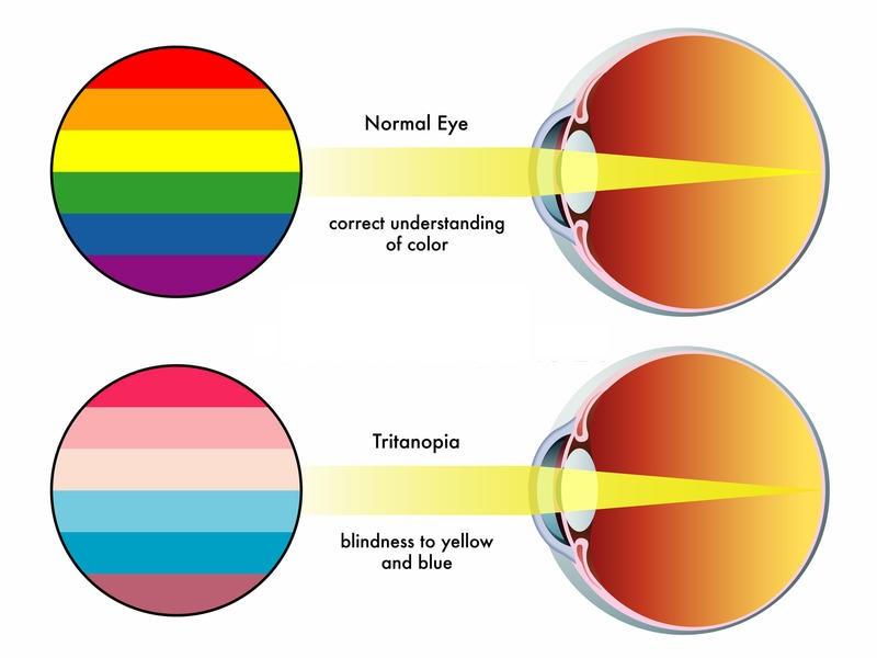 Color Blind Eye Diagram Wiring Diagram