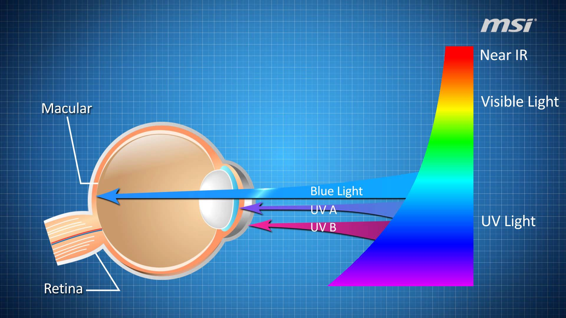 blue light filter effect on eye protection uv light retina damage eye harm