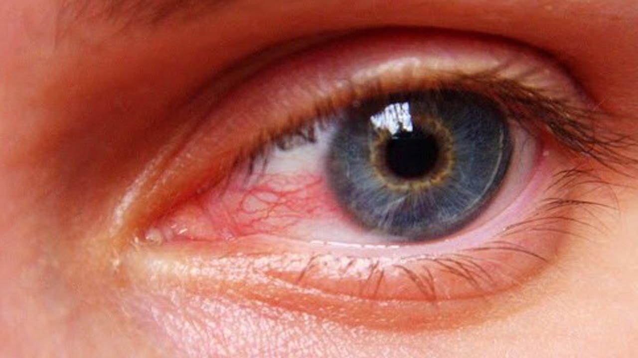 eye strain eye health blue light filter iris software screen light protection